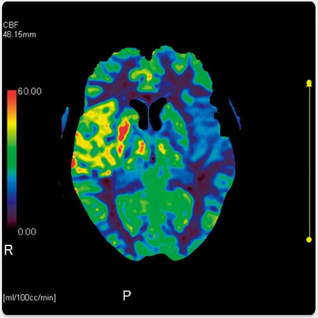 Neuro - CBP Study