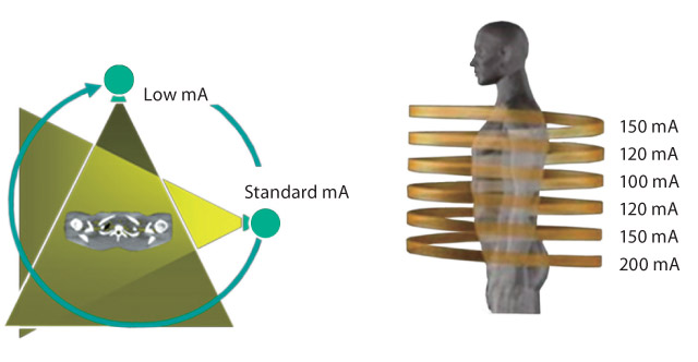 SUREEXPOSURE 3D Adaptive
