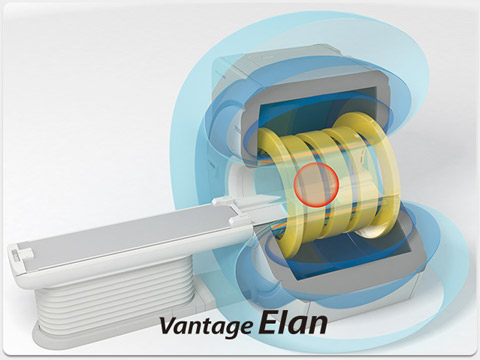 Advanced Magnet System Elan