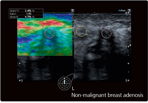 Non-malignant breast adenosis