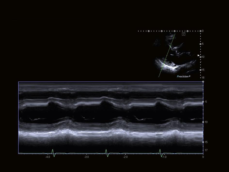 aus_PPT_i900_Cardiac_S16_RZ_RGB