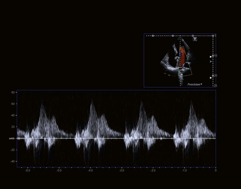 aus_PPT_i900_Cardiac_S17_RZ_RGB
